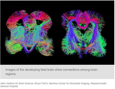 Map Of Developing Human Brain Shows >> Map Of The Developing Human Brain Shows Where Problems Begin