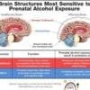 FASD brain